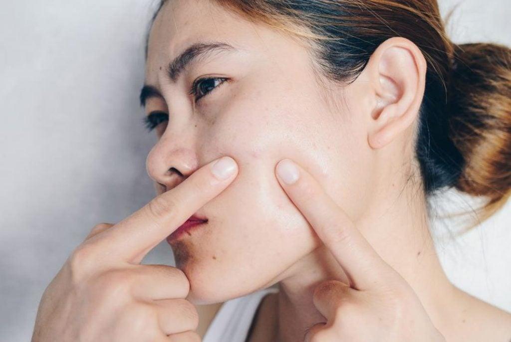 3 phương pháp trị mụn phổ biến