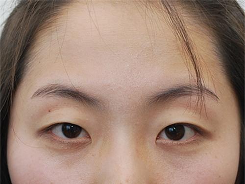 lông mi ngắn khiến mắt bạn kém hấp dẫn (Ảnh minh họa)